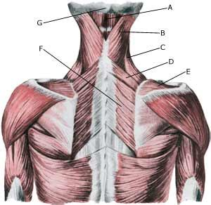 Muscle infiltrations in the neck/shoulder - Sportnetdoc