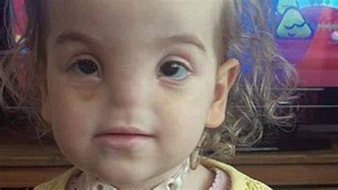 Meet 2 Yr Old Girl Born With No Nose - YouTube